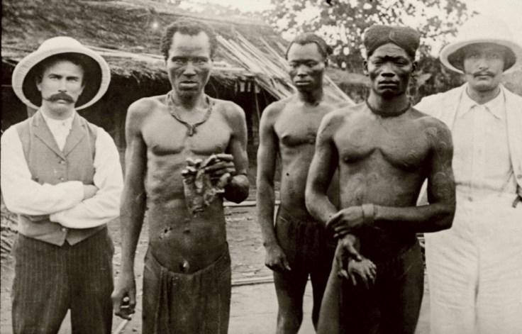 Manos cortadas en el Congo Belga